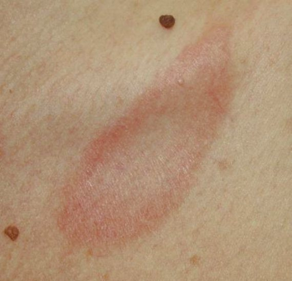 Псориазис - симптоми, лечение, диета — Д-р Каляшева
