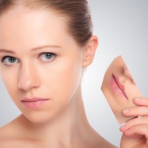 herpes-woman-skin