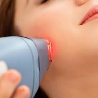 5 съвета, ако планирате терапия с лазер