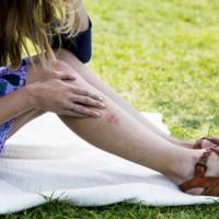 Ухапванията от насекоми могат да предизвикат алергични реакции на кожата