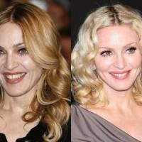 Знаменитости преди и след Botox & Филъри