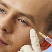 Най-честите заблуди за ботулиновия токсин