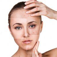 10 ефективни лечения при белези от акне